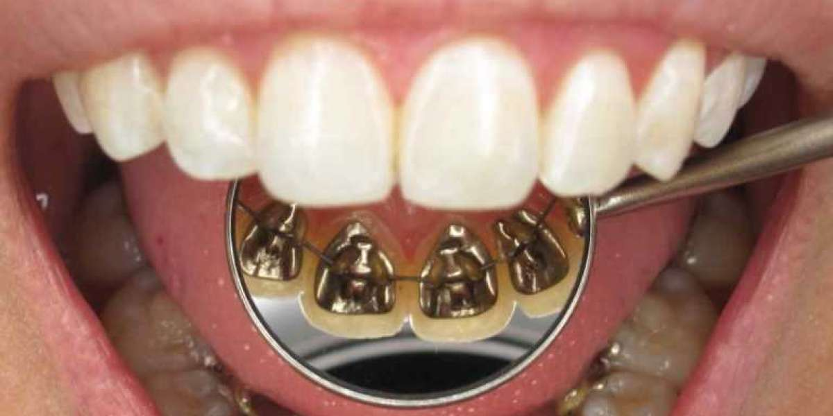 Get the best root canal treatment in Gurgaon, at Aspen Dental