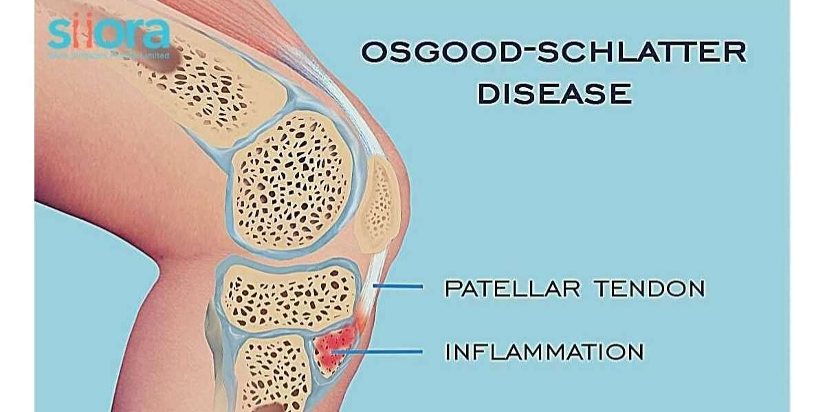 Osgood-Schlatter Syndrome - What You Must Know
